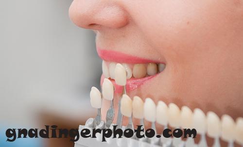 estetik diş hekimliği, lamina diş, estetik tedaviler