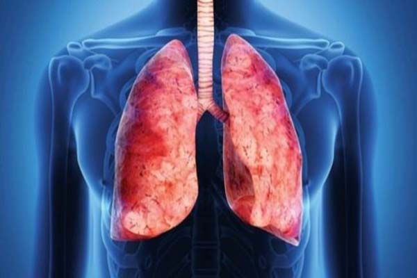 Bronşektazi nedir, Bronşektazi nasıl bir hastalık, Bronşektazi hastalığının tedavisi