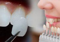 lamina diş fiyatları ne kadar, lamina diş fiyatlarını etkileyen şeyler, lamina diş fiyatları ne kadar