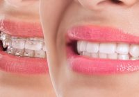 ortodonti tedavisi uygulanan durumlar, hangi durumlarda ortodonti tedavisi uygulanır, ortodonti tedavisinin yararları