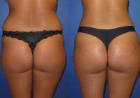 bakırköy liposuction merkezi, liposuction yaptırma, liposuction merkezleri bakırköy