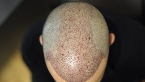 saç ekim ücretleri, saç ektirme ücreti, saç ekim fiyatı