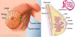 göğüs kanseri ameliyatı, göğüs kanseri ameliyatı sonrası, göğüs kanseri ameliyatından sonrası