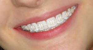 şeffaf diş teli fiyatı, diş teli fiyatları