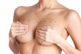 göğüs dikleştirme fiyatları, göğüs dikleştirme ameliyatı fiyatları, kadınlarda göğüs dikleştirme