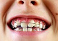 ortodonti fiyatları, 2019 ortodonti fiyatları ne kadar, ortodonti tedavi fiyatı
