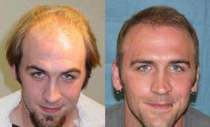 saç ekim doktoru, saç ekim teknikleri, saç ekimi yapımı