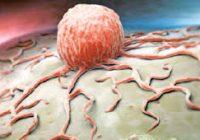 kanser türleri, tedavisi olan kanser türleri