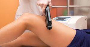 üst bacak epilasyonu, üst bacak lazer epilasyonu, lazer epilasyon yapımı