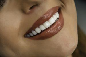 gülüş estetiği, gülüş estetiği yapımı