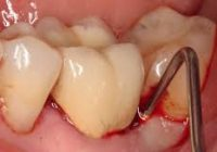 diş apsesi, diş apsesi tedavisi yapımı, diş apsesi nasıl tedavi edilir