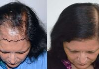 saç dökülmesi, saç dökülmesi tedavisi, saç dökülmesi nedenleri