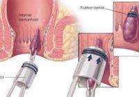 hemoroid tedavisi, hemoroid tedavisi ilaçları, hemoroid nasıl tedavi edilir